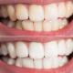दाँत पहेँलो भएर चिन्तित हुनुहुन्छ ? चम्काउन अपनाउनुस् यस्तो उपाय